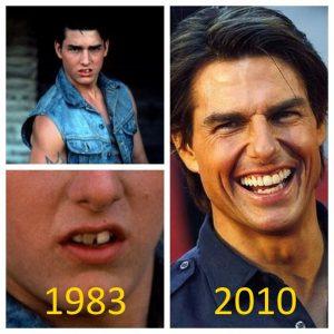 Tom Cruise teeth